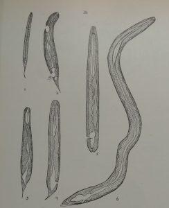 intestine thing